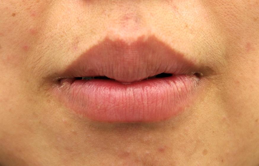唇 腫れ かゆい
