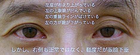 眼瞼下垂の症状