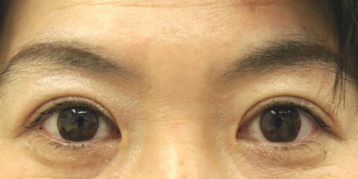 手術の一例: 自然な重瞼ラインを希望 ▷ 術前→術後18ヶ月 眉が下がり額のシワも減少し、おとなしめの重瞼ラインになりました